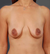 Breast Lift Photos: Benelli Only: Case 8 - before