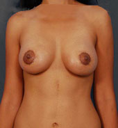 Breast Lift Photos: Benelli Only: Case 9 - After 10 Days