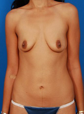 Breast Lift Photos: Benelli Only: Case 9 - before