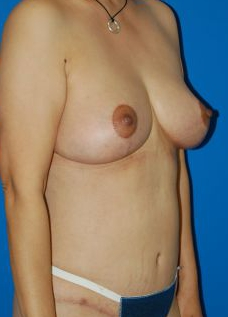 Breast Lift Photos: Case 1 - After 4 Months