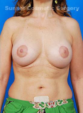 Breast Lift Photos: Case 10
