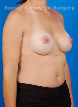 Mastopexy Breast Lift Photos: Case 11 - after