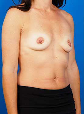 Mastopexy Breast Lift Photos: Case 11 - before