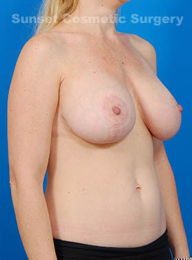 Breast Lift Photos: Case 12 - after