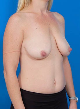 Breast Lift Photos: Case 12 - before