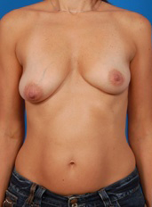 Breast Lift Photos: Case 13 - before