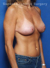 Breast Lift Photos: Case 14 - after