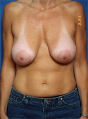 Breast Lift Photos: Case 14 - before