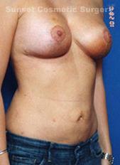 Mastopexy Breast Lift Photos: Case 15