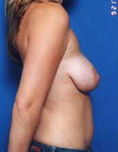 Mastopexy Breast Lift Photos: Case 15 - before