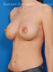 Breast Lift Photos: Case 16 - after