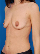 Breast Lift Photos: Case 16 - before