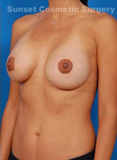 Breast Lift Photos: Case 18 - after
