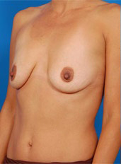 Breast Lift Photos: Case 18 - before