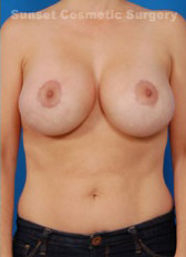Breast Lift Photos: Case 19 - after