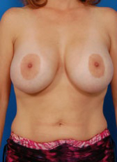 Breast Lift Photos: Case 19 - before