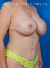 Breast Lift Photos: Case 20 - After 3 Years