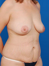 Breast Lift Photos: Case 20 - before
