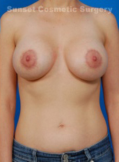 Breast Lift Photos: Case 21 - after