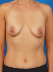Breast Lift Photos: Case 21 - before
