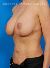 Breast Lift Photos: Case 22 - after