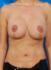 Breast Lift Photos: Case 22