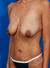 Breast Lift Photos: Case 22 - before
