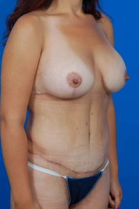 Breast Lift Photos: Case 26 - After 1 Year
