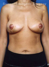 Breast Lift Photos: Case 4 - After 2 Weeks
