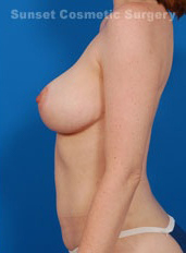 Breast Lift Photos: Case 5 - after