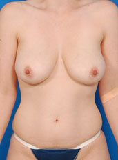 Breast Lift Photos: Case 5 - before