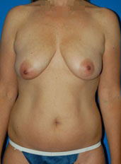 Breast Lift Photos: Case 7