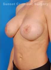 Breast Lift Photos: Case 8 - after
