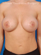 Breast Lift Photos: Case 8