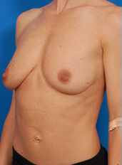 Breast Lift Photos: Case 8 - before