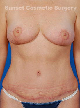 Breast Lift Photos: Case 9 - After 2 Months