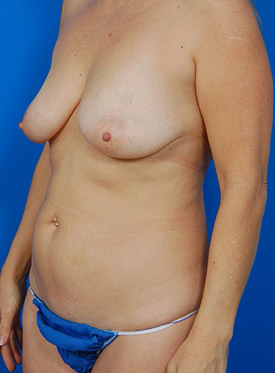 Breast Lift Photos: Case 9 - before