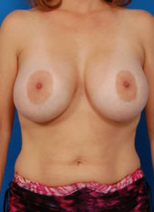 Nipple Reduction : Case 5 - before