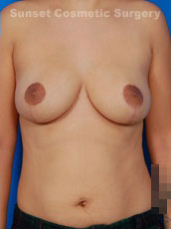 Breast Reduction Photos: Case 1 - after