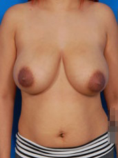 Breast Reduction Photos: Case 1 - before