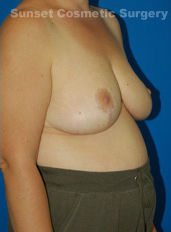 Breast Reduction Photos: Case 2 - after