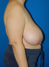 Breast Reduction Photos: Case 2 - before