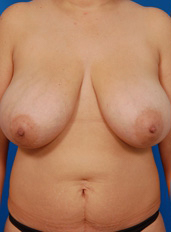 Breast Reduction Photos: Case 3