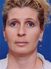 Brow Lift, Forehead Lift Photos: Case 1
