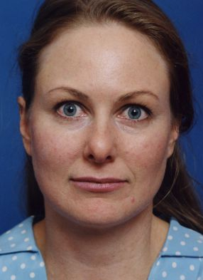 Brow Lift, Forehead Lift & Fat Grafting Photos: Case 8