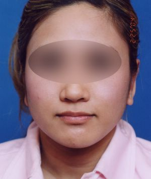 Ear Surgery (Otoplasty) Photos: Case 10 - After 2.5 Months