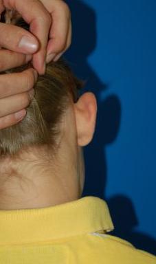 Ear Surgery (Otoplasty) Photos: Case 11 - before