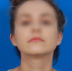 Ear Surgery (Otoplasty) Photos: Case 12 - After 4 Months