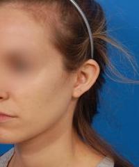 Ear Surgery (Otoplasty) Photos: Case 12 - before