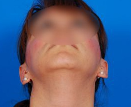 Ear Surgery (Otoplasty) Photos: Case 14 - After 8 Months